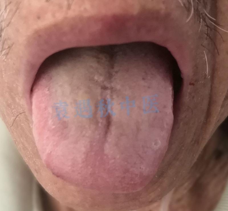 卫某舌苔02